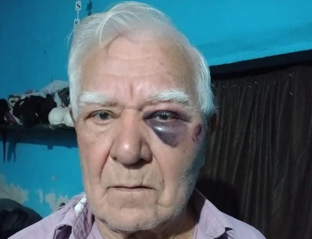 BRUTAL GOLPIZA A UN JUBILADO EN SU CASA, PARA ROBARLE EL SUELDO