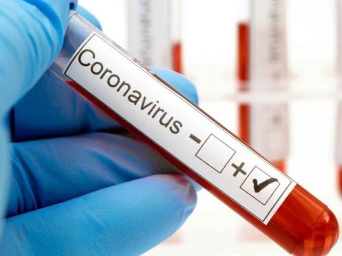 COVID-19: SALUD PÚBLICA INFORMÓ EL PARTE EPIDEMIOLÓGICO PROVINCIAL